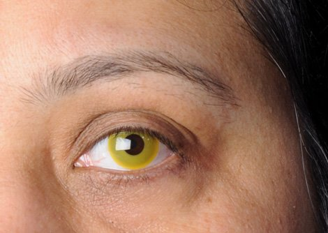 Yellow Eye Lenses Funky Yellow Contact L...